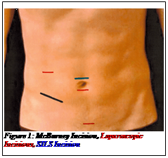 Text Box:  Figure 1: McBurney Incision, Laparoscopic Incisions, SILS Incision