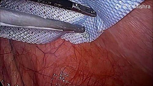 Laparoscopic Hernia Repair (Includes 2 DVD-Roms) - Dr. R.K. Mishra