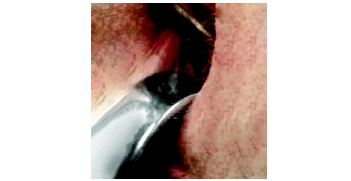 Vaginal speculum