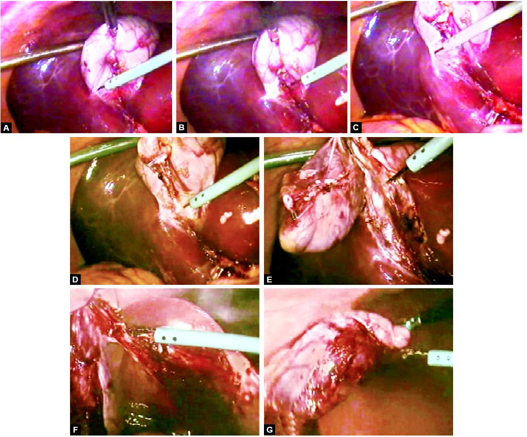 Separation of gallbladder from liver using hook