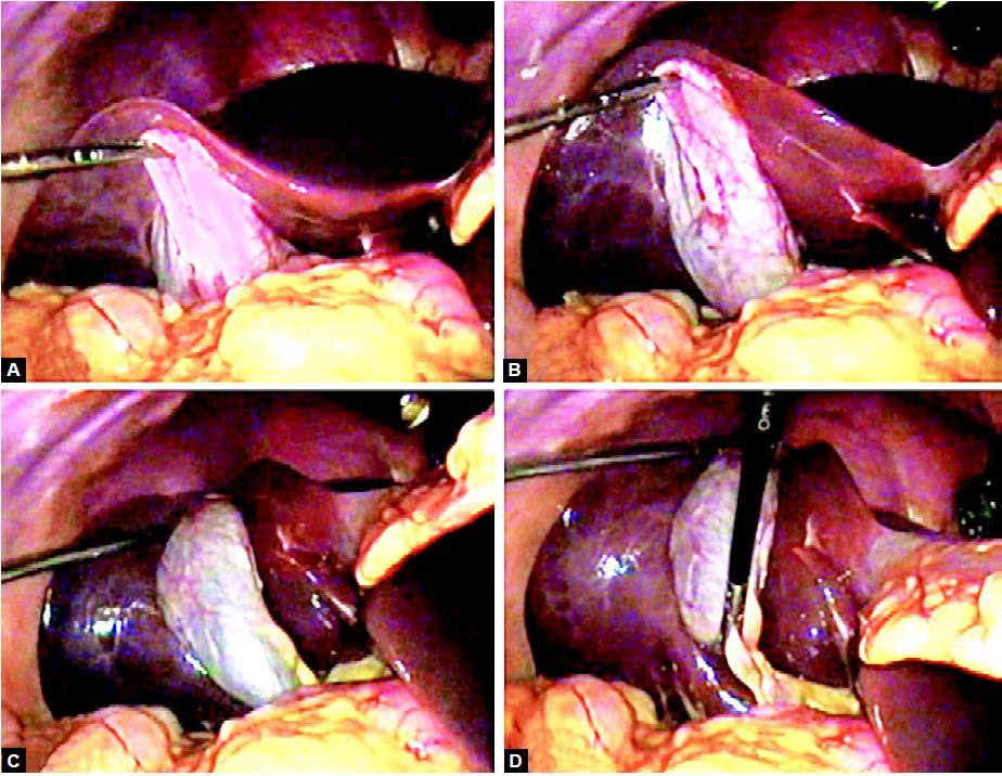 Proper traction for exposure of cystic pedicle