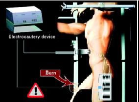 Remote injury with an electrocautery device