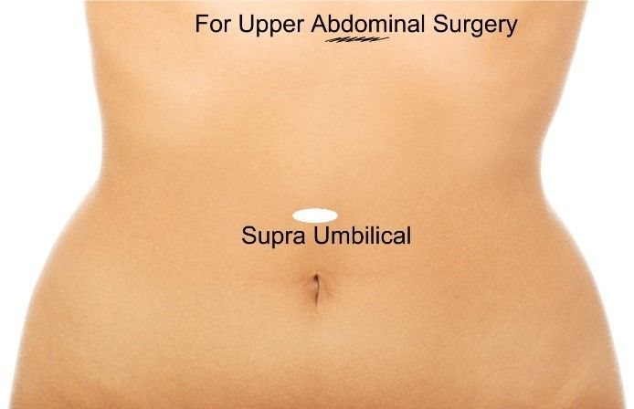 Supra Umbilical Port