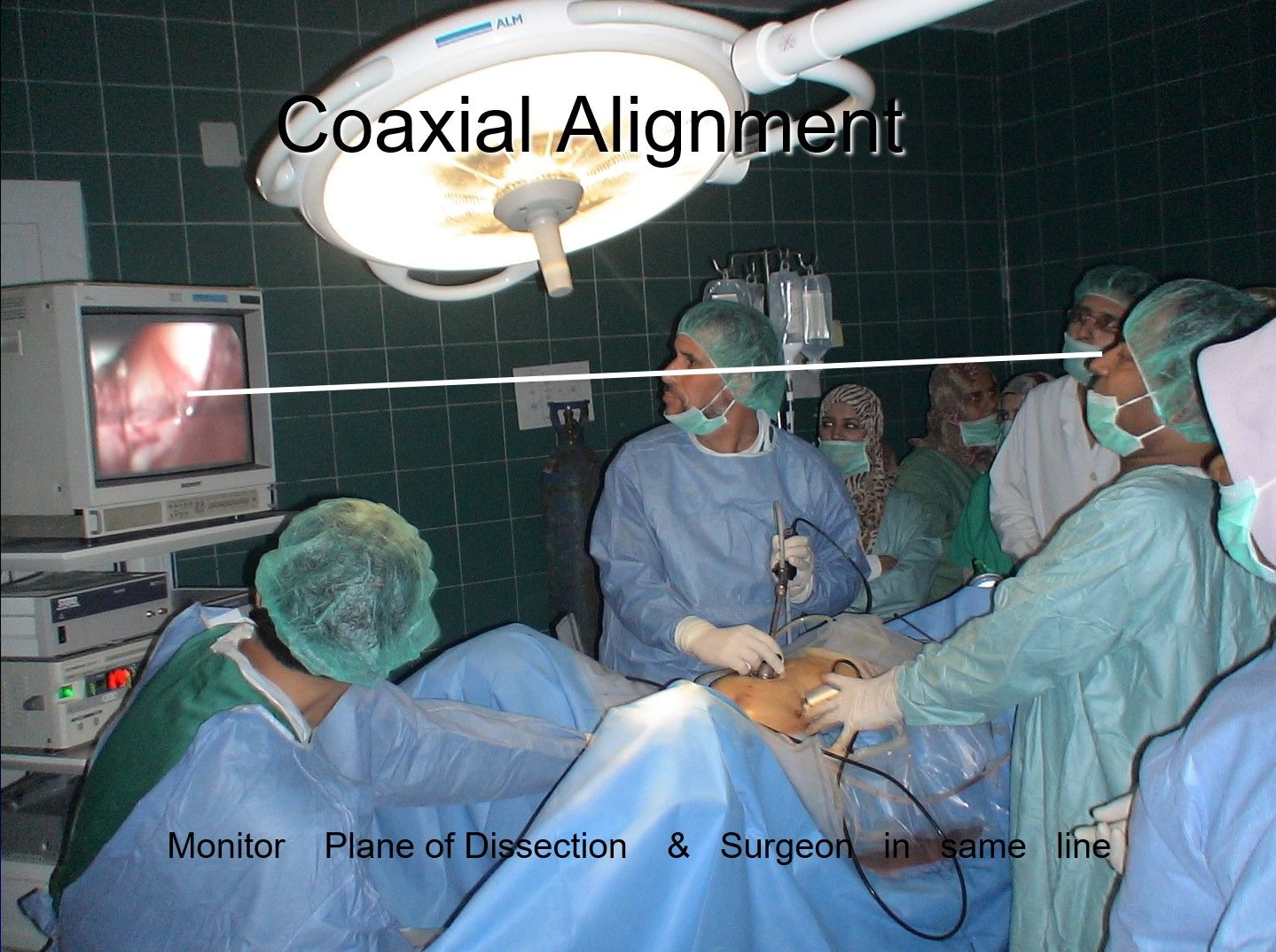 Surgeon stands to the left of patient in most of the right sided pathology