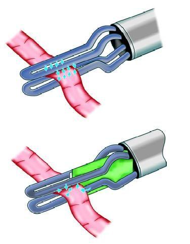 Tripolar device