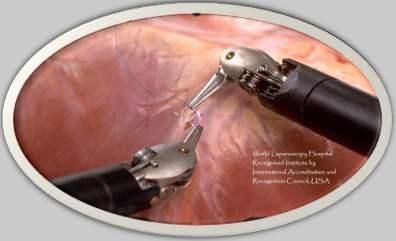 da Vinci Robotic Surgery at World Laparoscopy Hospital