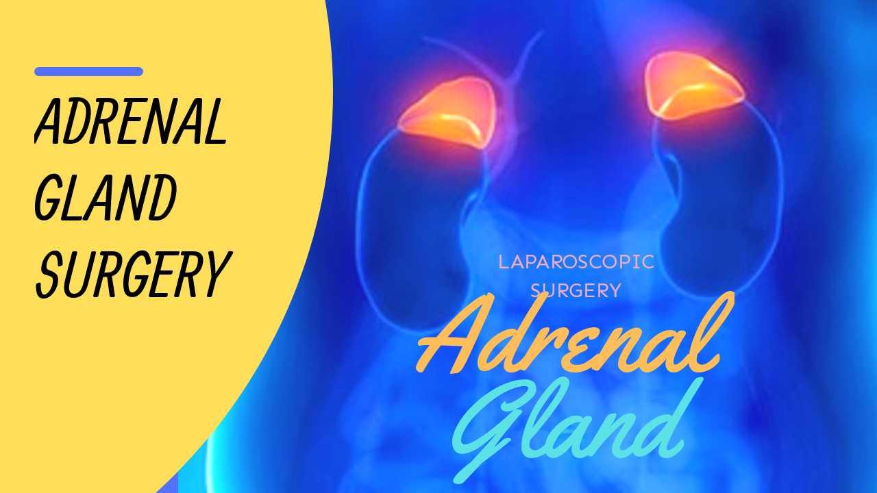 अधिवृक्क ग्रंथि सर्जरी के बारे में सबसे महत्वपूर्ण रोगी जानकारी