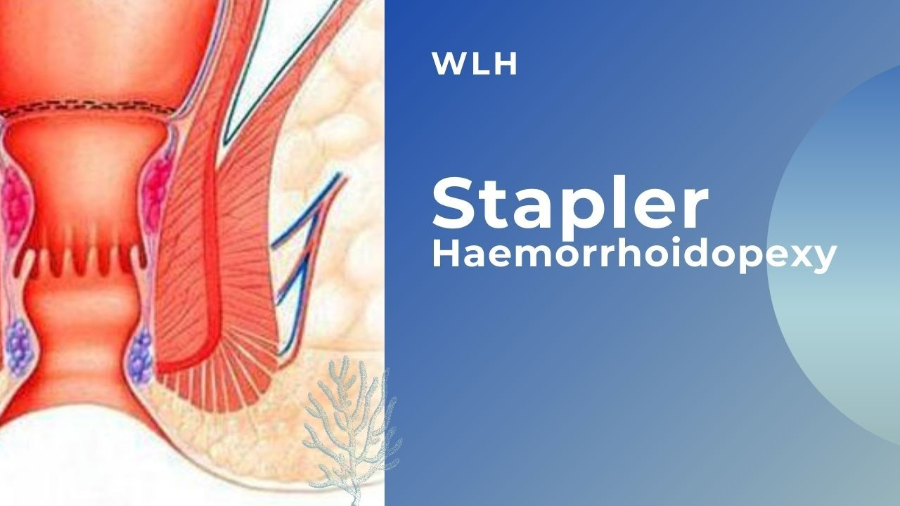 Stapler Haemorrhoidopexy