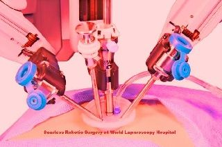 Da Vinci Robotic Scarless Gallbladder Surgery