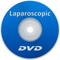 Laparoscopic DVD