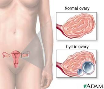 Anatomy of Ovary