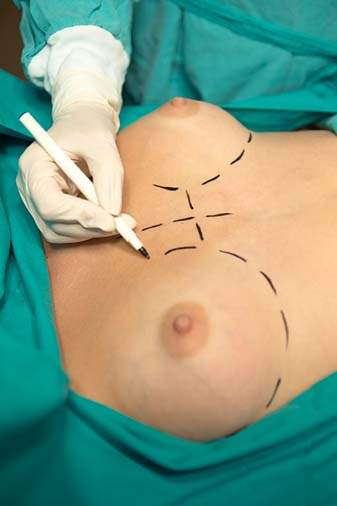 Breast surgery operation