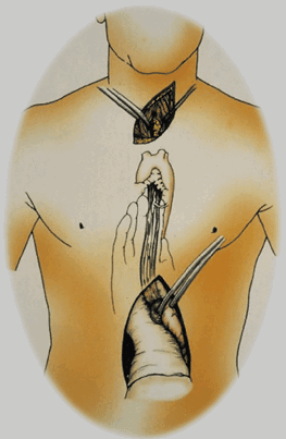 Frequently Asked Question About Esophagectomy