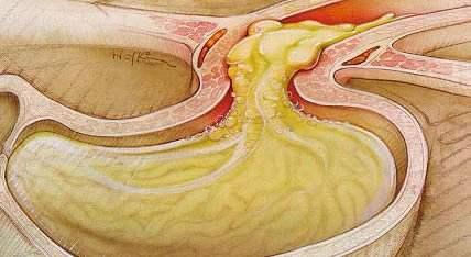 6 Weeks Pregnant Acid Burn Indigestion