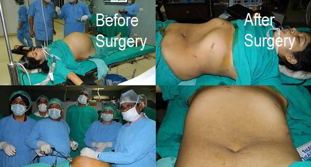 Laparoscopic Ovarian Cystectomy
