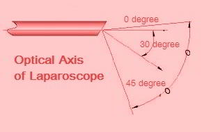 30 Degree Laparoscope