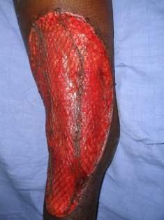 Laparoscopic Laparoscopic Article About Skin Grafting
