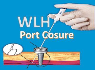 Port Closure in Laparoscopic Surgery