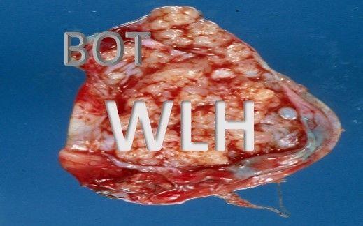 Borderline Ovarian Tumour