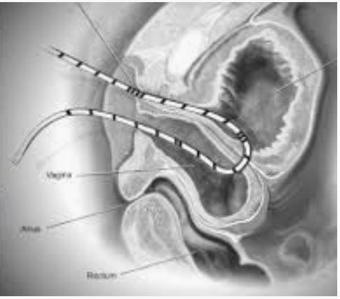 Vesico Vaginal Fistula