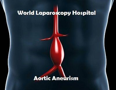 Abdominal Aortic Aneurism