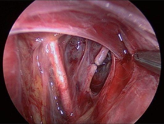 Ligation of Uterine Artery