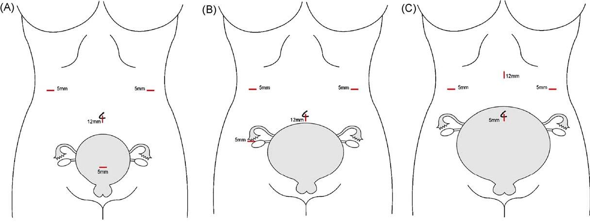Laparoscopic Cholecystectomy in pregnant patient