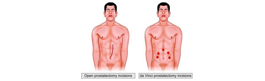 Comparison between open and da Vinci prostatectomy