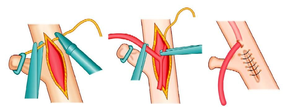 Diagrammatic representation of T tube fixation with an intracorporeal interrupted surgeons knot