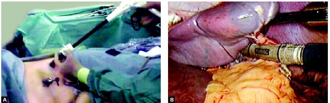 Use of endo GI linear stapler or vascular stapler can make the laparoscopic splenectomy easy but many surgeon use extracorporeal knot as their main skill to secure splenic umenti