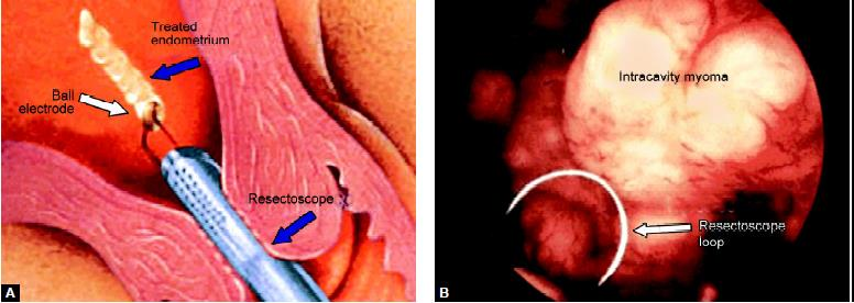 (A) Ball electrode; (B) Resectoscope loop