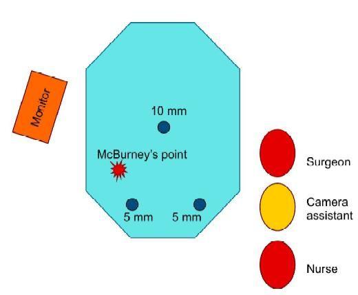 Alternative port position