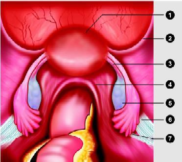 Laparoscopic anatomy of normal pelvis: (1) Uterus; (2) Round ligament; (3) Utero-ovarian ligament (proper ovarian ligament); (4) Uterosacral ligament; (5) Ovary; (6) Suspensory ligament of the ovary; (7) Ureter