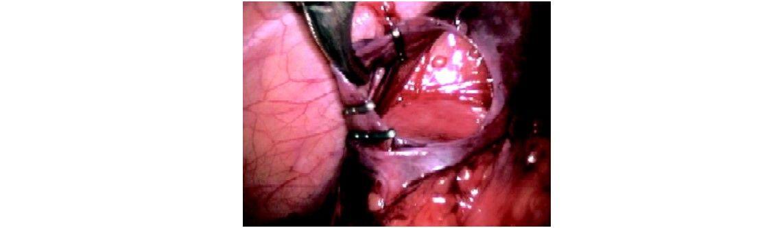 Clips applied around spermatic vein