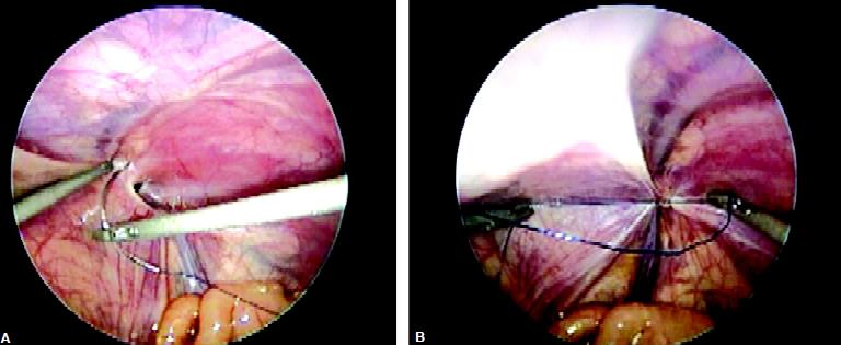 Closure of defect with intracorporeal suturing in pediatric age