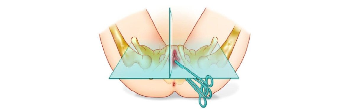 Dissect to the obturator membrane and perforate obturator membrane