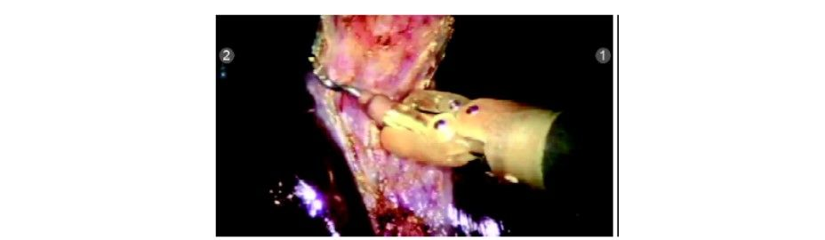 Dissection done in avascular plane