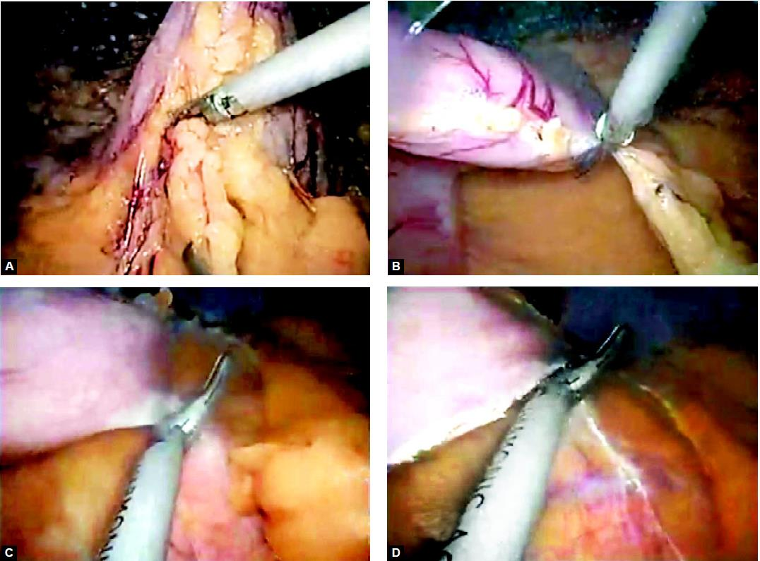 Dissection and mobilization of stomach along the greater curvature outside the epiploic arcade