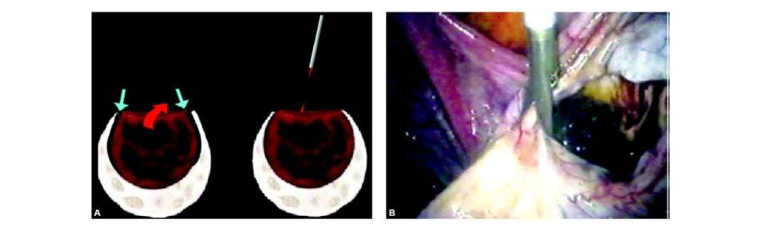 Endometrioma, deroofing and marsupialization