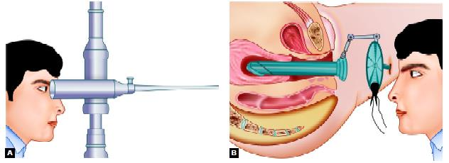 History of hysteroscopy: (A) First hysteroscope with cystoscope of desormeaux by Pantaleoni; (B) First hysteroscope with built in lens to magnify the image