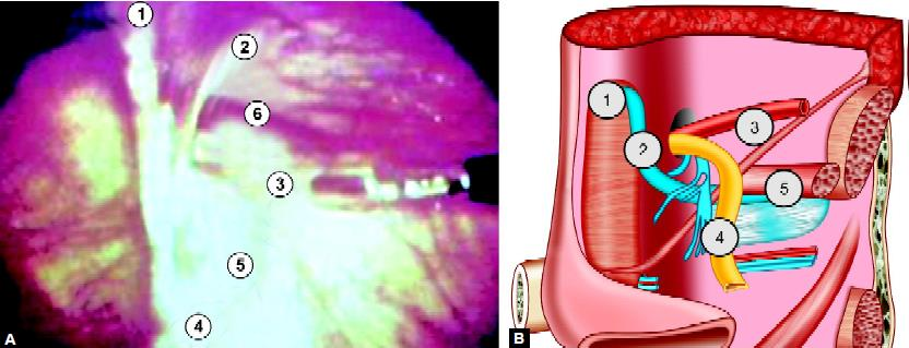 "Important landmarks in laparoscopic hernia repair: (1) Medial umbilical ligament; (2) Inferior epigastric vessels; (3) Spermatic vessels; (4) Vas deferens; (5) External iliac vessels in ""Triangle of doom""; (6) Indirect defect"