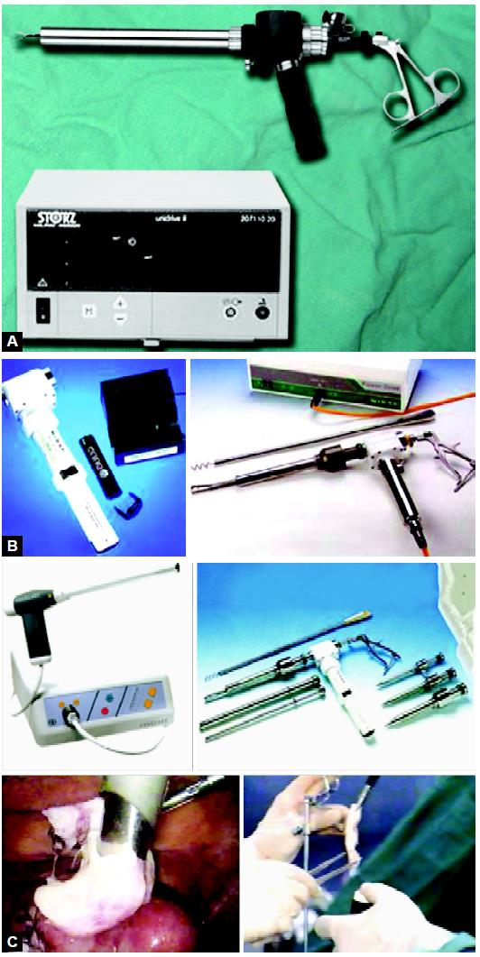 Morcellator is a necessary equipment for myoma tissue retrieval