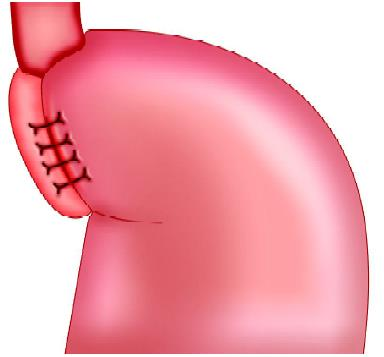 Nissen fundoplication (NF)