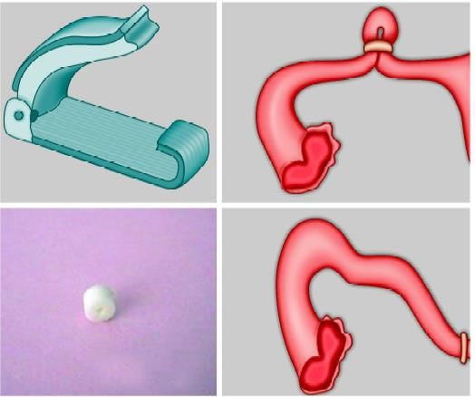 Various occlusive devices for sterilization