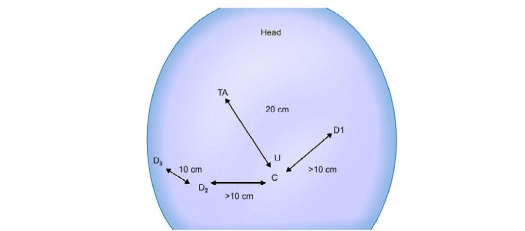Port positioning (TA: Target anatomy)