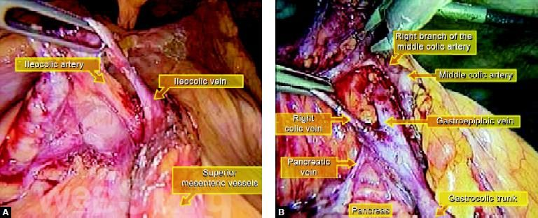 (A) Position of major blood vessels at the time of surgery; (B) Important vessels supplying right side of the colon