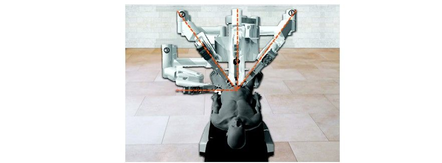 Relative positions of the instrument arms