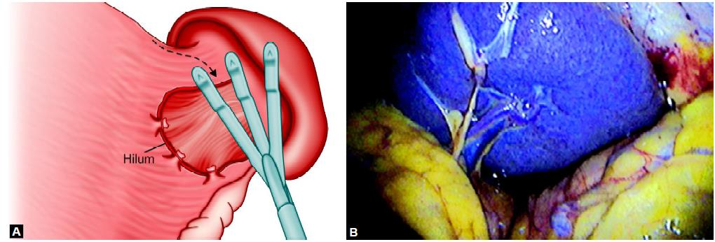 Retractor is necessary to expose the hilum of the spleen
