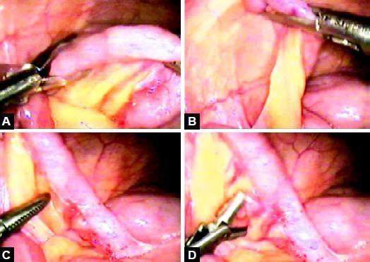 Retraction of an appendix