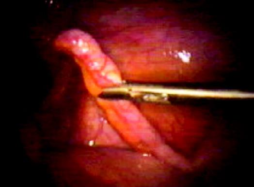 Retraction of an appendix